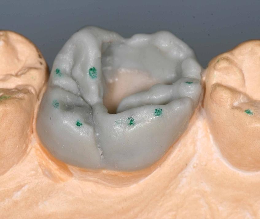 TPK: Modellation: Zahniportal.de